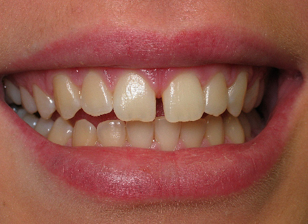 Cosmetic Bonding Procedure - before image
