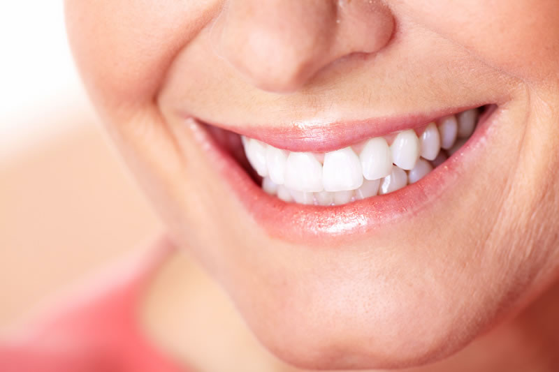 North York Dentist - Cosmetic Bonding - woman smiling