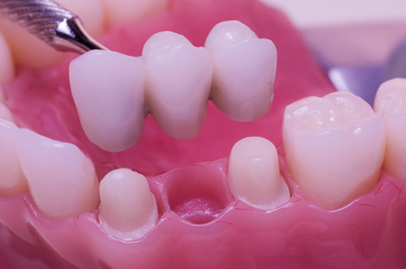 North York Dentist - Crowns-Bridges-Dentures - Bridges Restoration