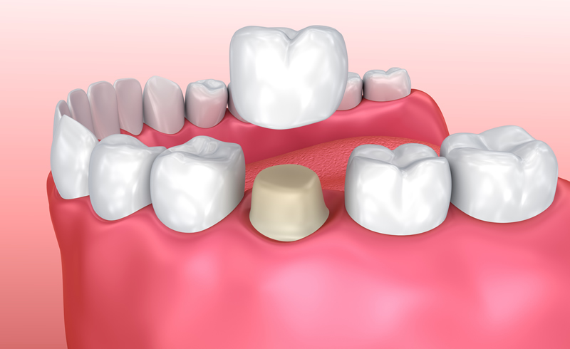 North York Dentist - Crowns-Bridges-Dentures - Crowns Restoration