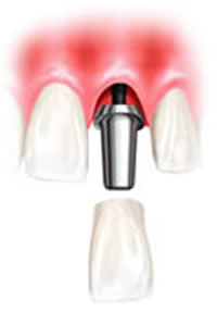 Dental Implant-Supported Dentures
