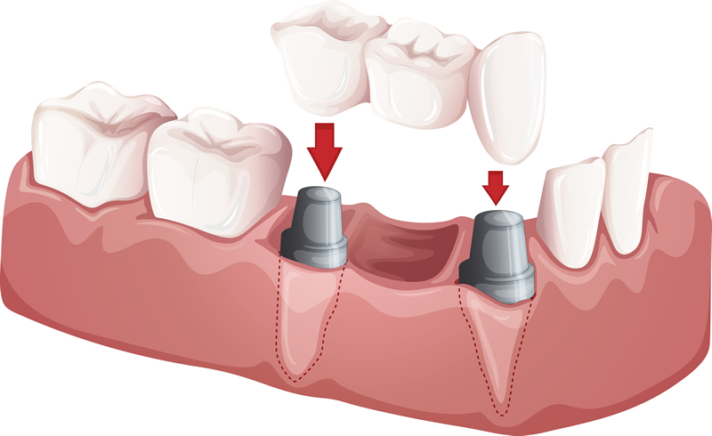 Dental Implants -Supported Crowns & Bridges