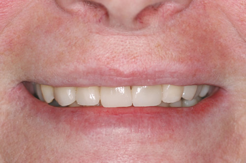 North York Dentist - Full-Mouth Makeovers - After photo