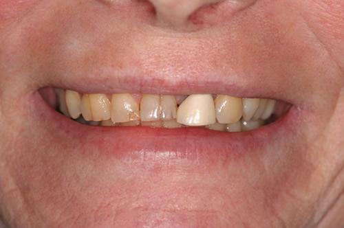 North York Dentist - Full-Mouth Makeovers - Before photo