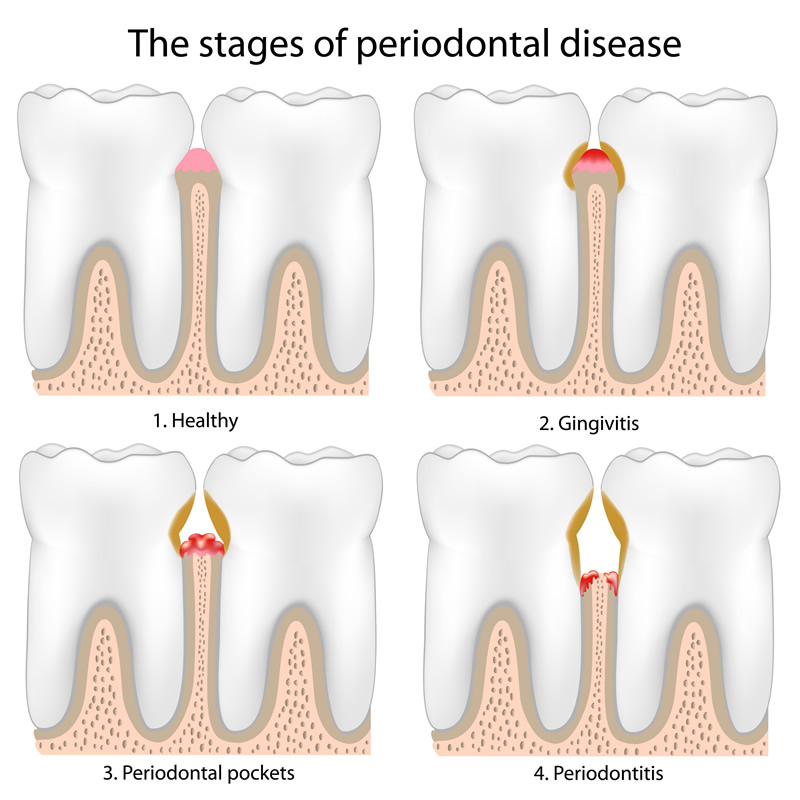 North York Dentist - Gum Disease Therapy - Stages of periodontal disease