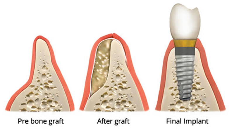Oral Surgery - Bone Grafts - Illustration
