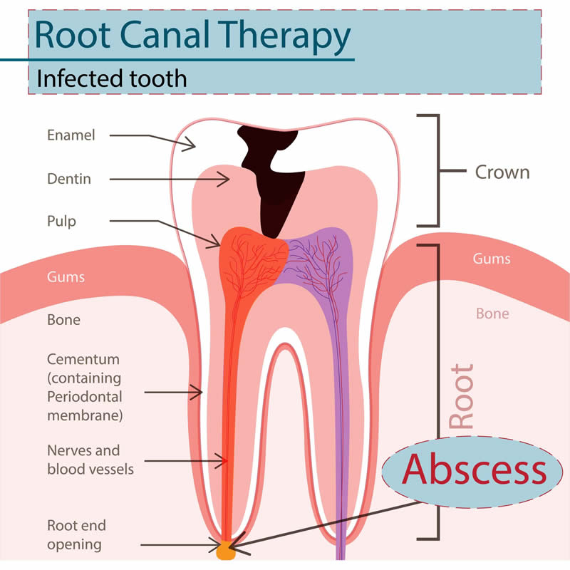 Oral Surgery - Root Canal Therapy (Endodontic)