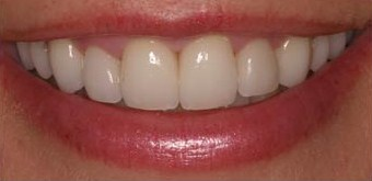 Oral Surgery - Periondontal - After photo