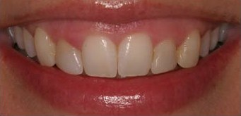 Oral Surgery - Periondontal - Before photo