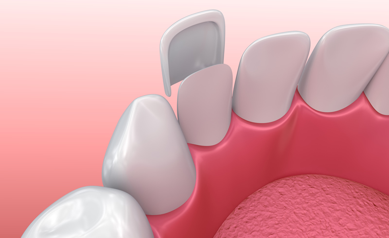 North York Dentist - Porcelain Veneers - Illustration
