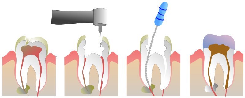 North York Dentist - Root Canal Therapy - Treatment Process