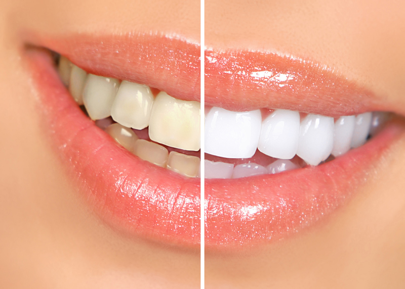 North York dentist - Teeth Whitening - before and after image
