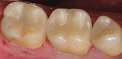 North York dentist - after photo - tooth-colored fillings