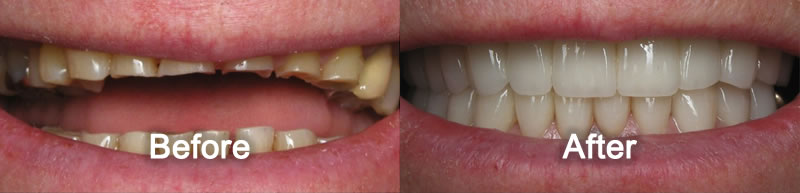 North York Dentist - Smile Gallery - Porcelain Veneers