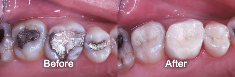 North York Dentist - Smile Gallery - White Fillings