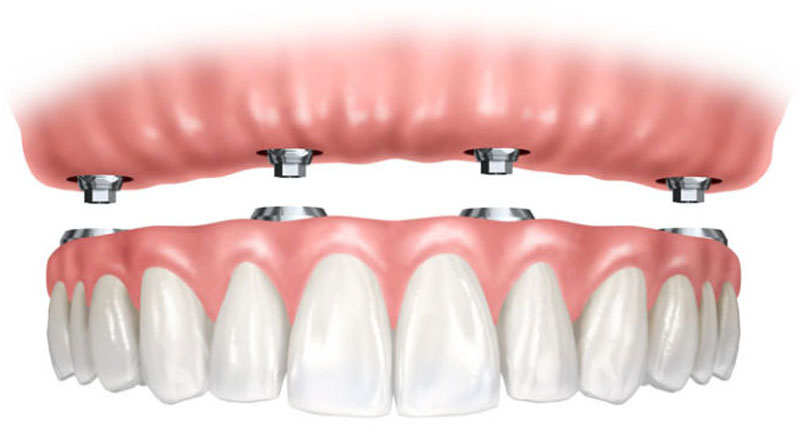 North York dentist-dental implants - supported denture section