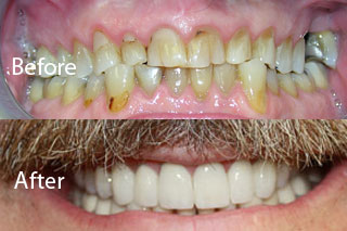 North York Dentist - Full Mouth Makeovers