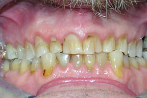 North York dentist-full-mouth-makeover3-before-300x199
