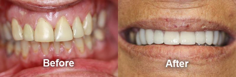 north-york-dentist-smile-gallery-crowns-before-after