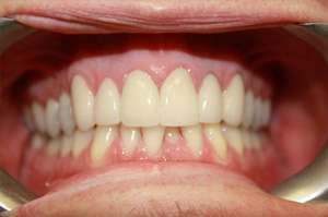 North York dentist-full-mouth-makeover-after3-300x199